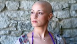 woman-who-lost-hair-due-to-cancer-treatment